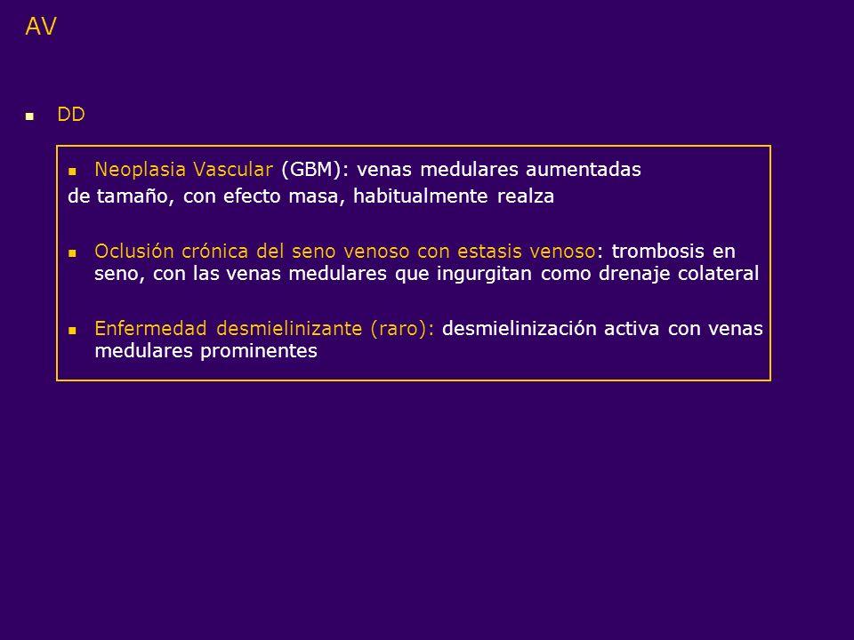 AV DD Neoplasia Vascular (GBM): venas medulares aumentadas de tamaño, con efecto masa, habitualmente realza Oclusión crónica del seno venoso con estas