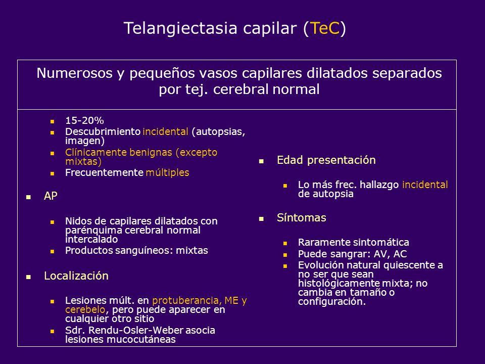 Numerosos y pequeños vasos capilares dilatados separados por tej. cerebral normal 15-20% Descubrimiento incidental (autopsias, imagen) Clínicamente be