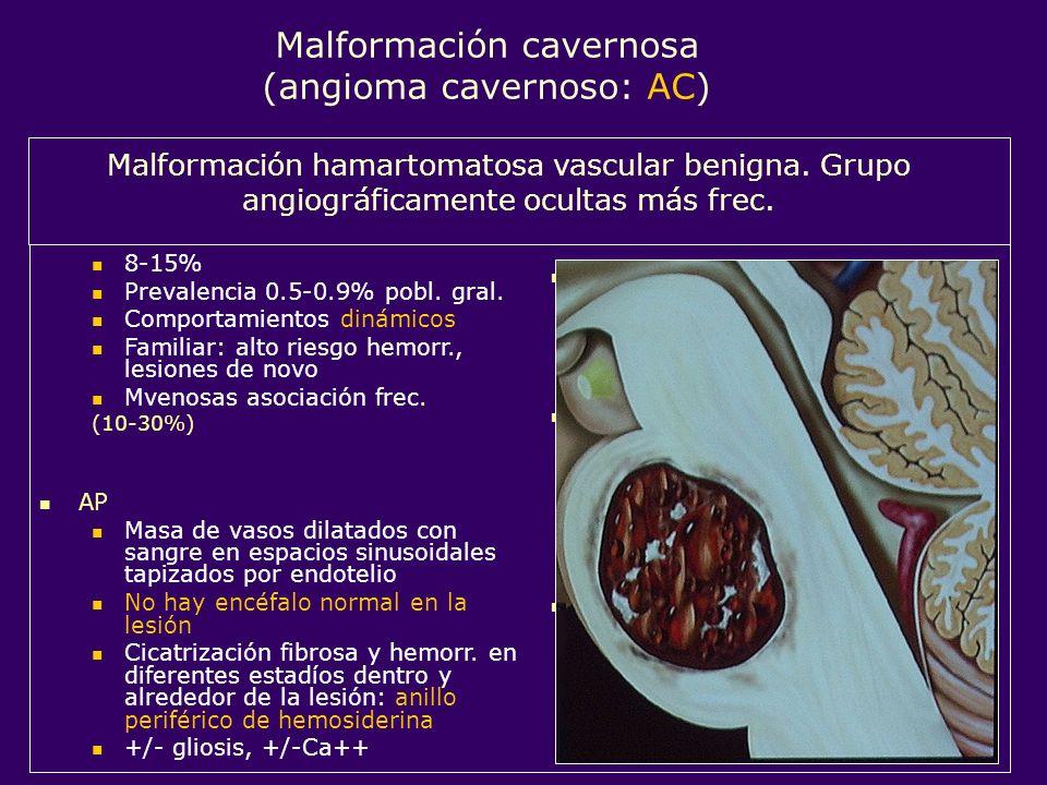 Localización Cualquier sitio 80% supratentoriales (frontal) 14-20% infra- (protuberancia) Edad de presentación 61% 20-60a, pico 40-60a. 27% pediátrica