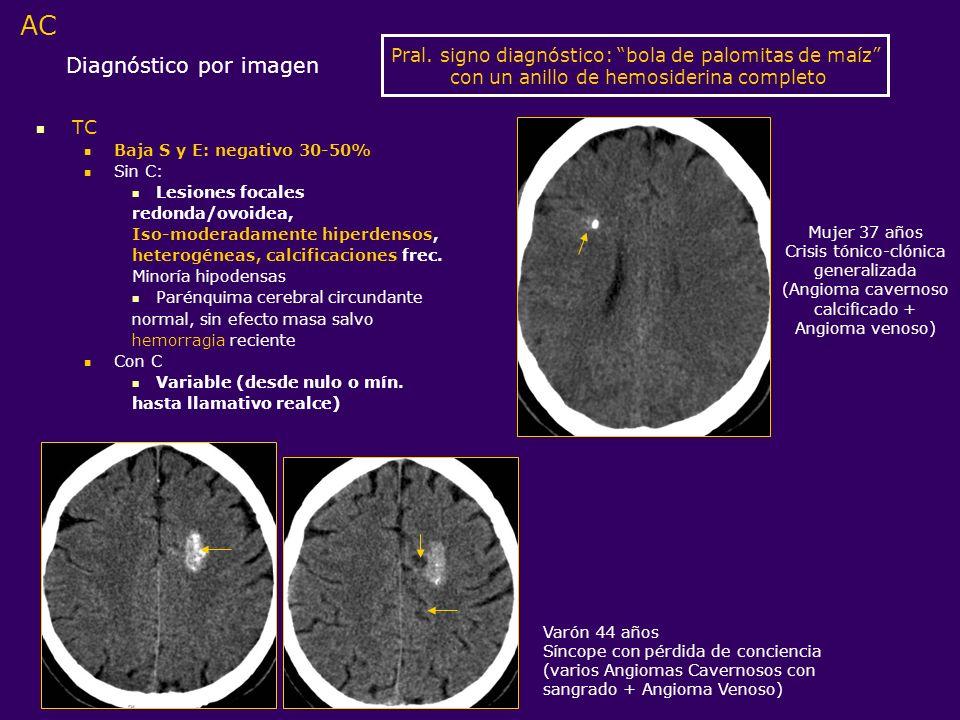Diagnóstico por imagen TC Baja S y E: negativo 30-50% Sin C: Lesiones focales redonda/ovoidea, Iso-moderadamente hiperdensos, heterogéneas, calcificac