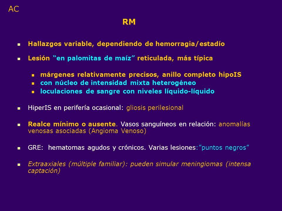 RM Hallazgos variable, dependiendo de hemorragia/estadío Lesión en palomitas de maíz reticulada, más típica márgenes relativamente precisos, anillo co