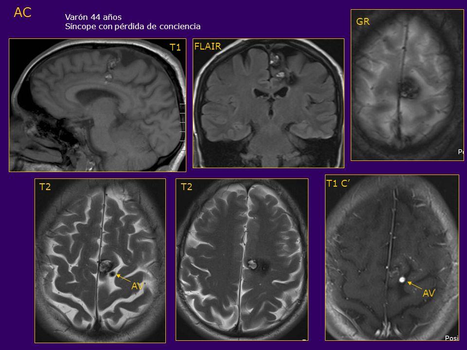 AC T1 T2 T1 C GR Varón 44 años Síncope con pérdida de conciencia FLAIR T2 AV