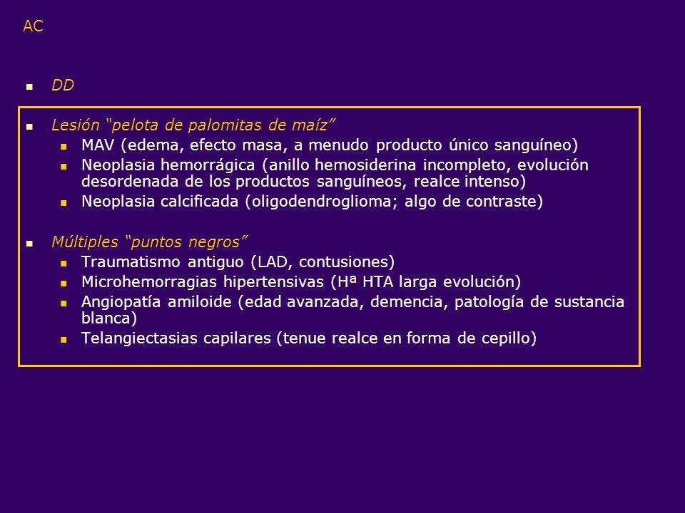 AC DD Lesión pelota de palomitas de maíz MAV (edema, efecto masa, a menudo producto único sanguíneo) Neoplasia hemorrágica (anillo hemosiderina incomp