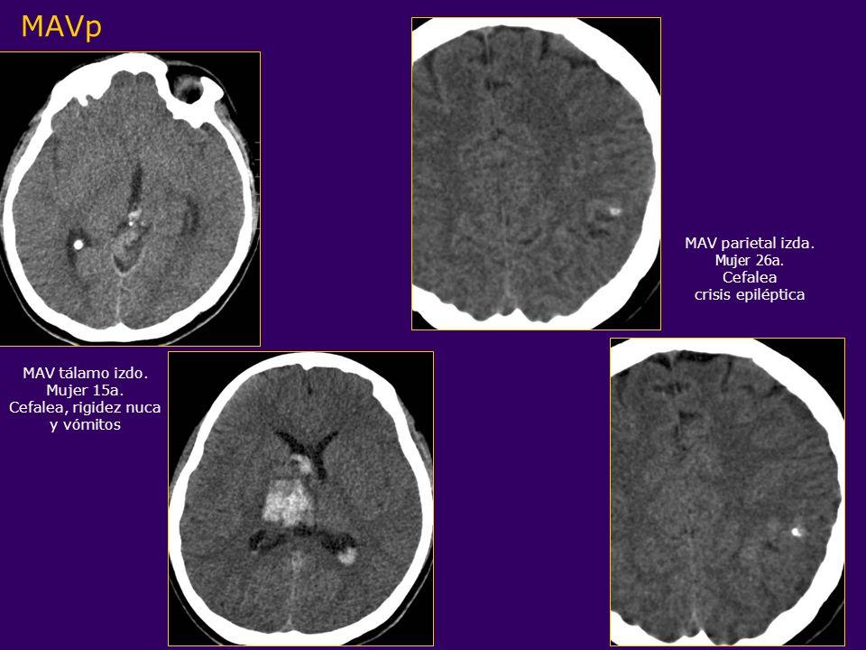 MAV parietal izda. Mujer 26a. Cefalea crisis epiléptica MAV tálamo izdo. Mujer 15a. Cefalea, rigidez nuca y vómitos