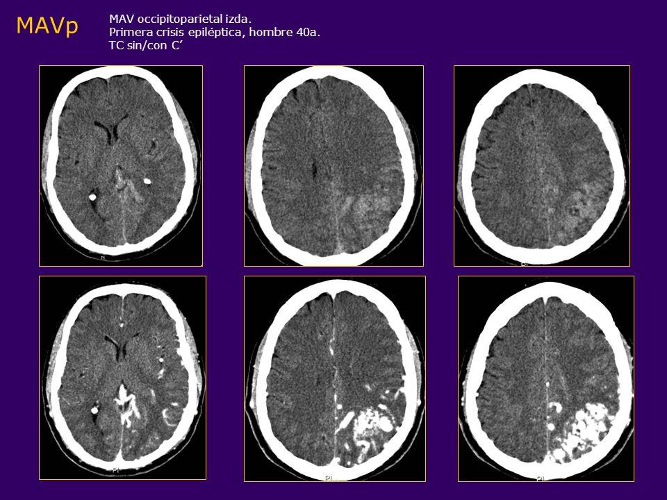 DD: Neoplasias muy vascularizadas o hemorrágicas (+ tejido intercalado) MAV permeable vs glioblastoma con CAV MAV trombosada (críptica) vs AC, Neoplasia calcificada, Oligodendroglioma, Astrocitoma bajo grado MAVp Hallazgos radiológicos Angiografía MAV completamente trombosada puede ser normal, con mínimo efecto masa o mostrar un cortocircuito muy sutil ( una vena de drenaje precoz sin vasos nutricios dilatados o un nido vascular identificable)
