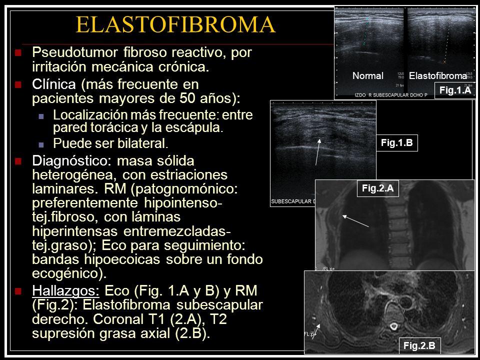 ELASTOFIBROMA Fig.1.A Fig.1.B NormalElastofibroma Fig.2.A Fig.2.B Pseudotumor fibroso reactivo, por irritación mecánica crónica. Clínica (más frecuent