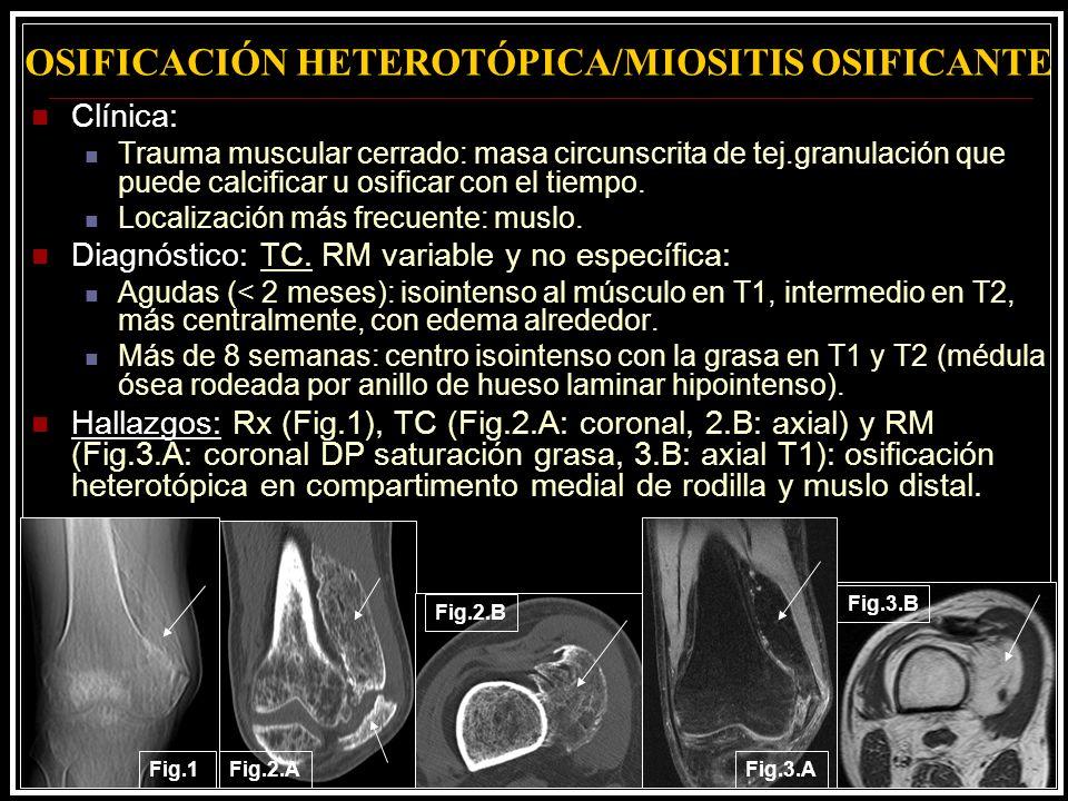 OSIFICACIÓN HETEROTÓPICA/MIOSITIS OSIFICANTE Clínica: Trauma muscular cerrado: masa circunscrita de tej.granulación que puede calcificar u osificar co