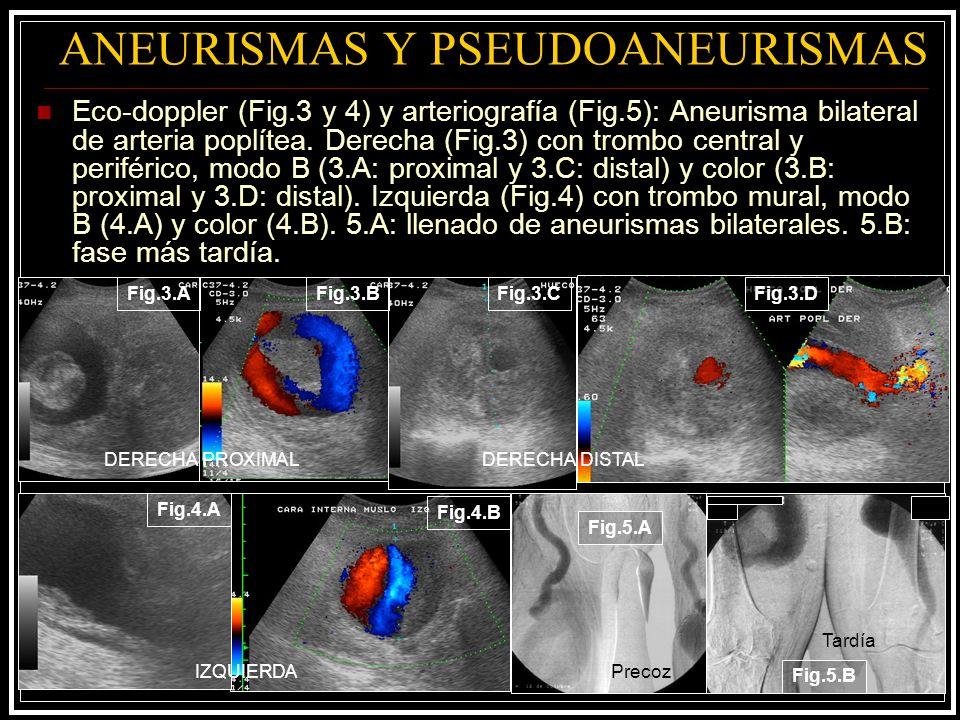 ANEURISMAS Y PSEUDOANEURISMAS Eco-doppler (Fig.3 y 4) y arteriografía (Fig.5): Aneurisma bilateral de arteria poplítea. Derecha (Fig.3) con trombo cen