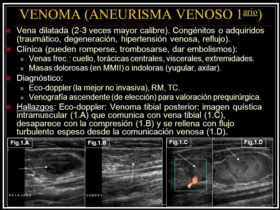 VENOMA (ANEURISMA VENOSO 1 ario ) Vena dilatada (2-3 veces mayor calibre). Congénitos o adquiridos (traumático, degeneración, hipertensión venosa, ref
