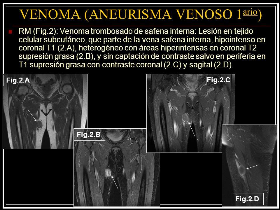 VENOMA (ANEURISMA VENOSO 1 ario ) RM (Fig.2): Venoma trombosado de safena interna: Lesión en tejido celular subcutáneo, que parte de la vena safena in