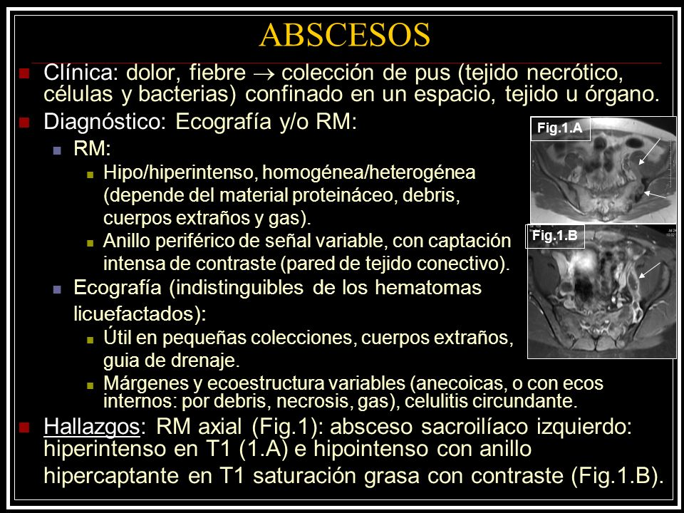 ABSCESOS Clínica: dolor, fiebre colección de pus (tejido necrótico, células y bacterias) confinado en un espacio, tejido u órgano. Diagnóstico: Ecogra