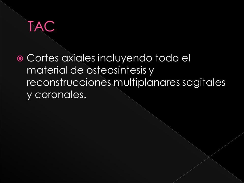 Cortes axiales incluyendo todo el material de osteosíntesis y reconstrucciones multiplanares sagitales y coronales.
