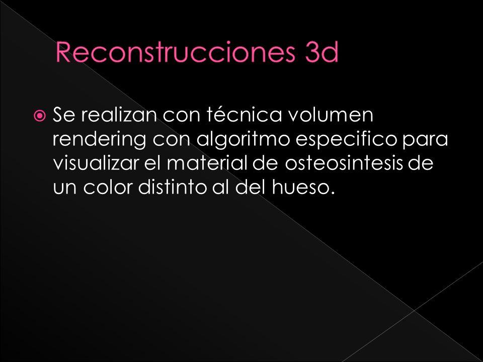 Se realizan con técnica volumen rendering con algoritmo especifico para visualizar el material de osteosintesis de un color distinto al del hueso.