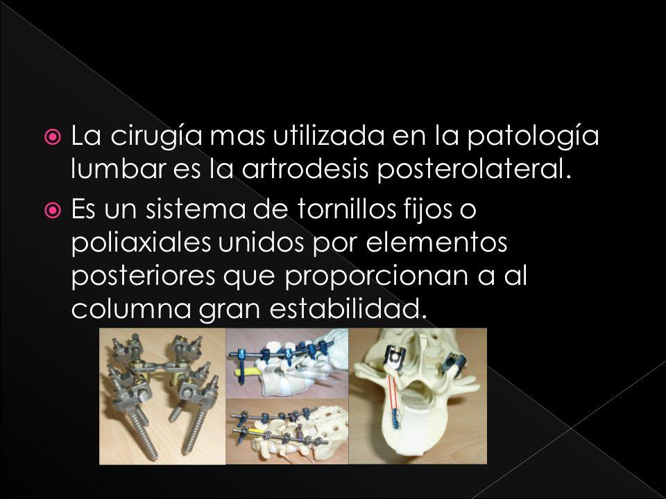 La cirugía mas utilizada en la patología lumbar es la artrodesis posterolateral. Es un sistema de tornillos fijos o poliaxiales unidos por elementos p