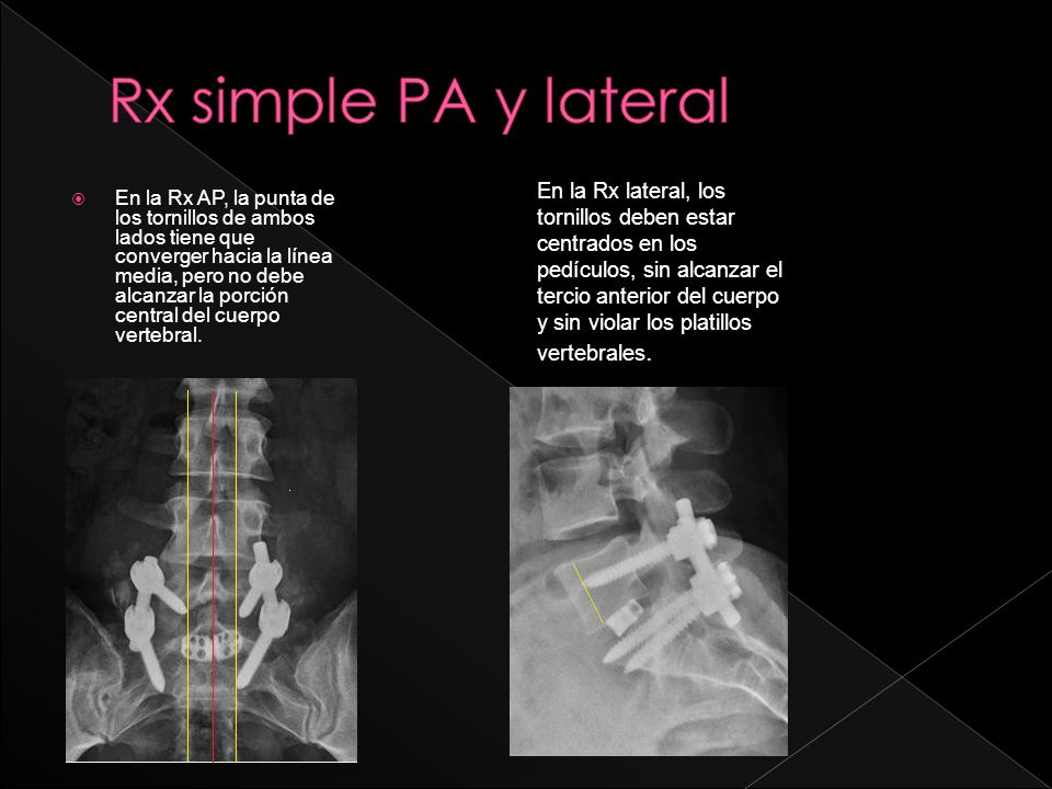 En la Rx AP, la punta de los tornillos de ambos lados tiene que converger hacia la línea media, pero no debe alcanzar la porción central del cuerpo vertebral.