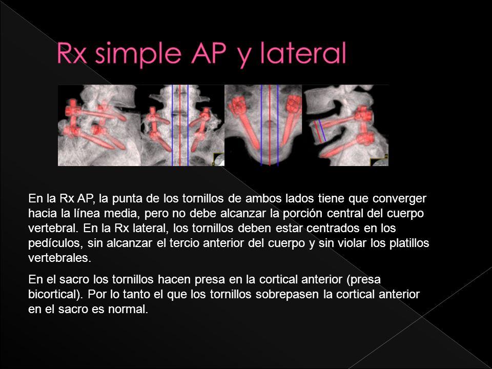 En la Rx AP, la punta de los tornillos de ambos lados tiene que converger hacia la línea media, pero no debe alcanzar la porción central del cuerpo ve