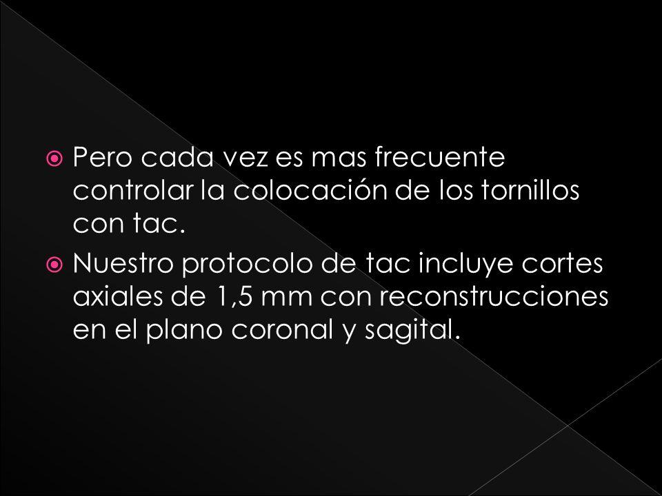 El tac se puede completar con reconstrucciones 3d.