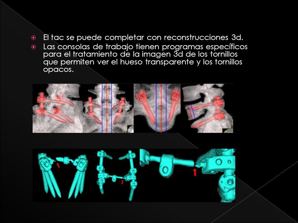 Objetivos Determinar utilidad del TC y reconstrucciones volumétricas para valoración material osteosíntesis lumbar.