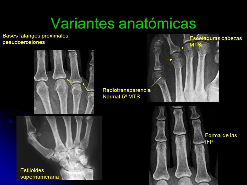 Variantes anatómicas Bases falanges proximales pseudoerosiones Radiotransparencia Normal 5º MTS Escotaduras cabezas MTS Estiloides supernumeraria Form