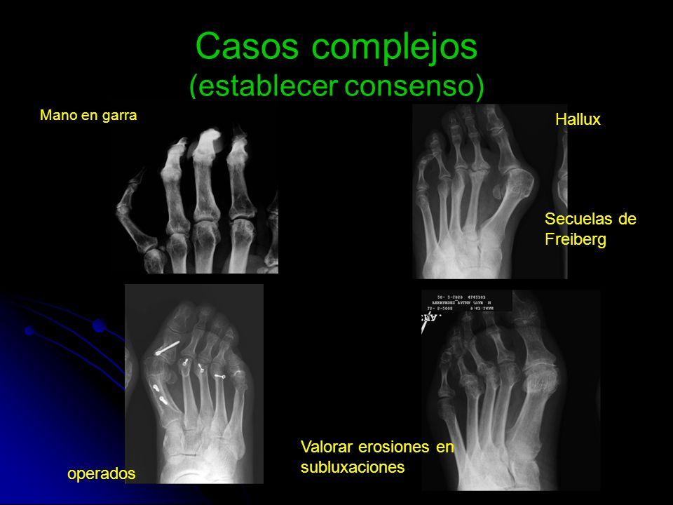 Casos complejos (establecer consenso) Mano en garra Hallux Secuelas de Freiberg operados Valorar erosiones en subluxaciones