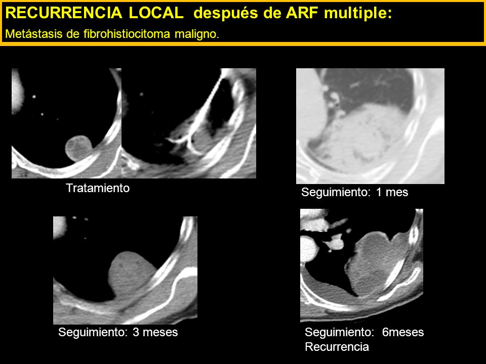 RECURRENCIA LOCAL después de ARF multiple: Metástasis de fibrohistiocitoma maligno.