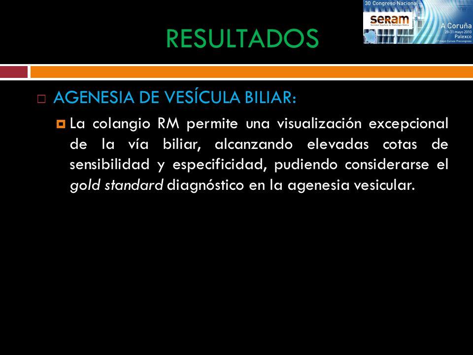 AGENESIA DE VESÍCULA BILIAR: RESULTADOS Ecografía de una niña de 5 años con hepatopatía fluctuante.
