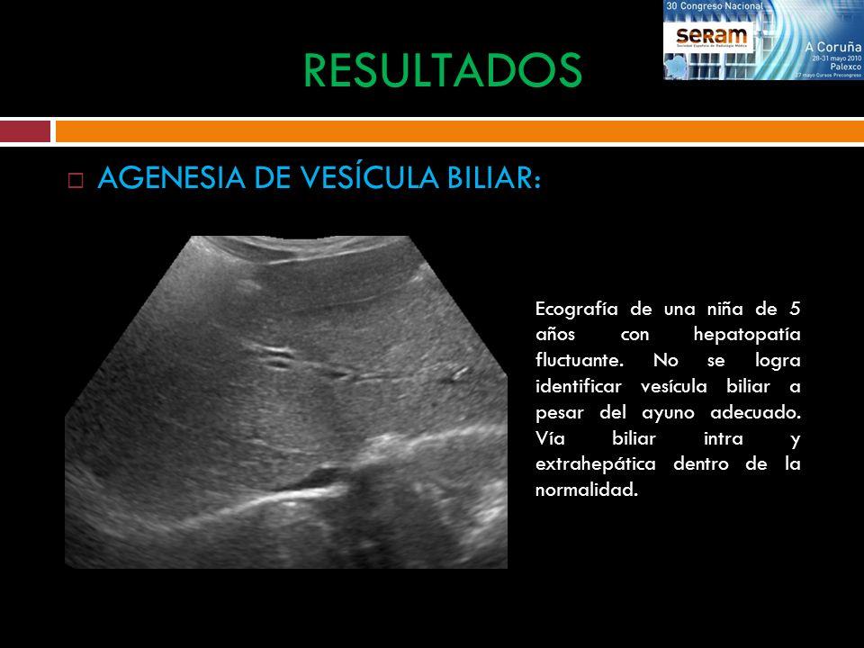 AGENESIA DE VESÍCULA BILIAR: RESULTADOS Ecografía de una niña de 5 años con hepatopatía fluctuante. No se logra identificar vesícula biliar a pesar de