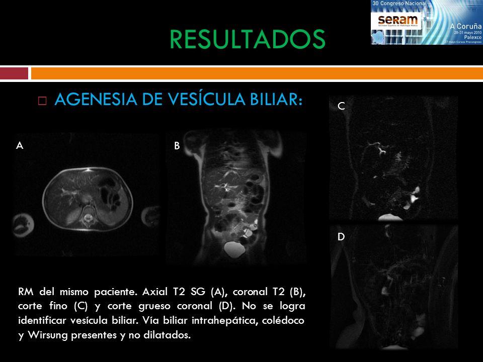 AGENESIA DE VESÍCULA BILIAR: RESULTADOS RM del mismo paciente. Axial T2 SG (A), coronal T2 (B), corte fino (C) y corte grueso coronal (D). No se logra