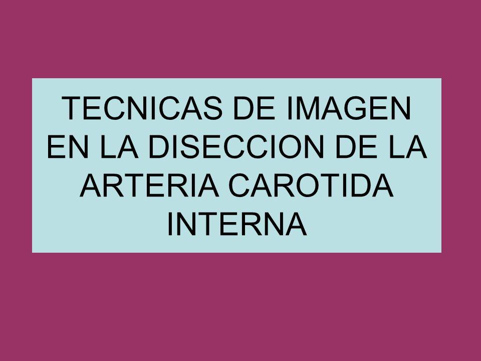 TECNICAS DE IMAGEN EN LA DISECCION DE LA ARTERIA CAROTIDA INTERNA