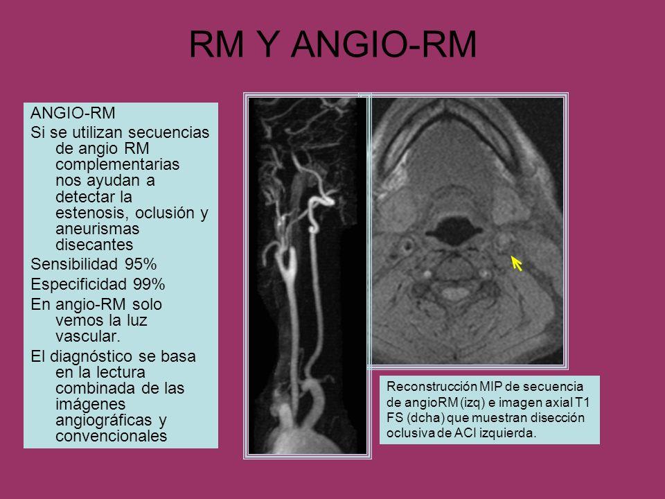RM Y ANGIO-RM ANGIO-RM Si se utilizan secuencias de angio RM complementarias nos ayudan a detectar la estenosis, oclusión y aneurismas disecantes Sens