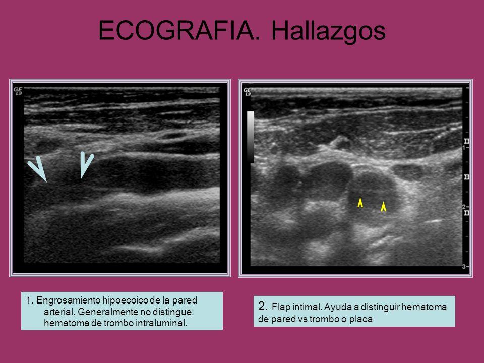 ECOGRAFIA. Hallazgos 1. Engrosamiento hipoecoico de la pared arterial. Generalmente no distingue: hematoma de trombo intraluminal. 2. Flap intimal. Ay