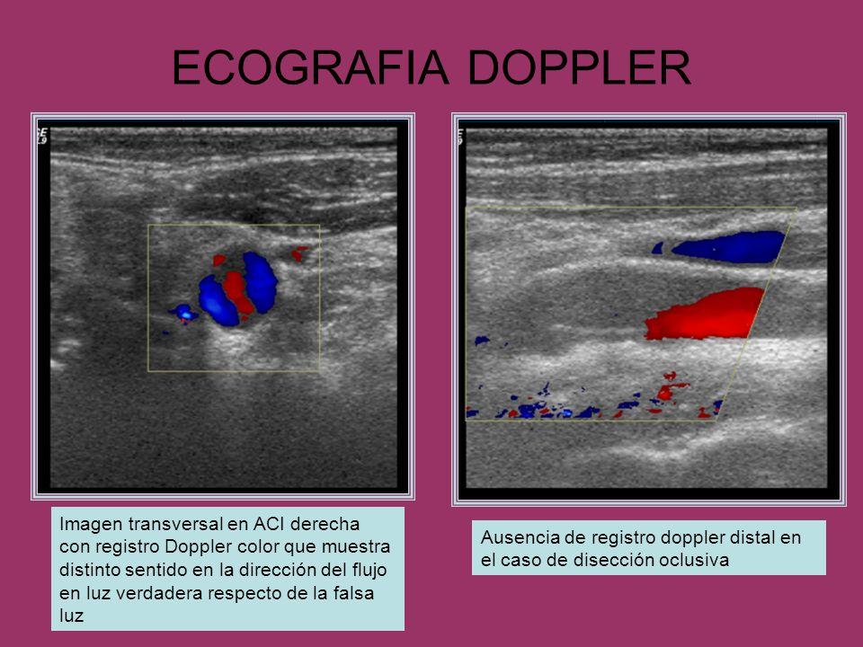 ECOGRAFIA DOPPLER Ausencia de registro doppler distal en el caso de disección oclusiva Imagen transversal en ACI derecha con registro Doppler color qu