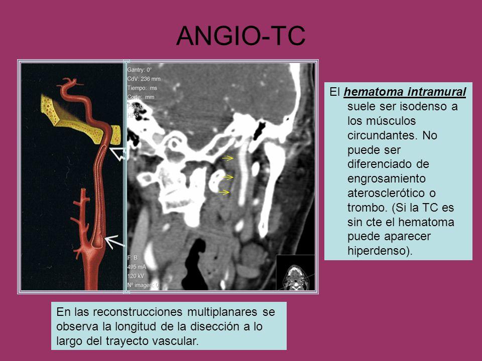 ANGIO-TC En las reconstrucciones multiplanares se observa la longitud de la disección a lo largo del trayecto vascular. El hematoma intramural suele s