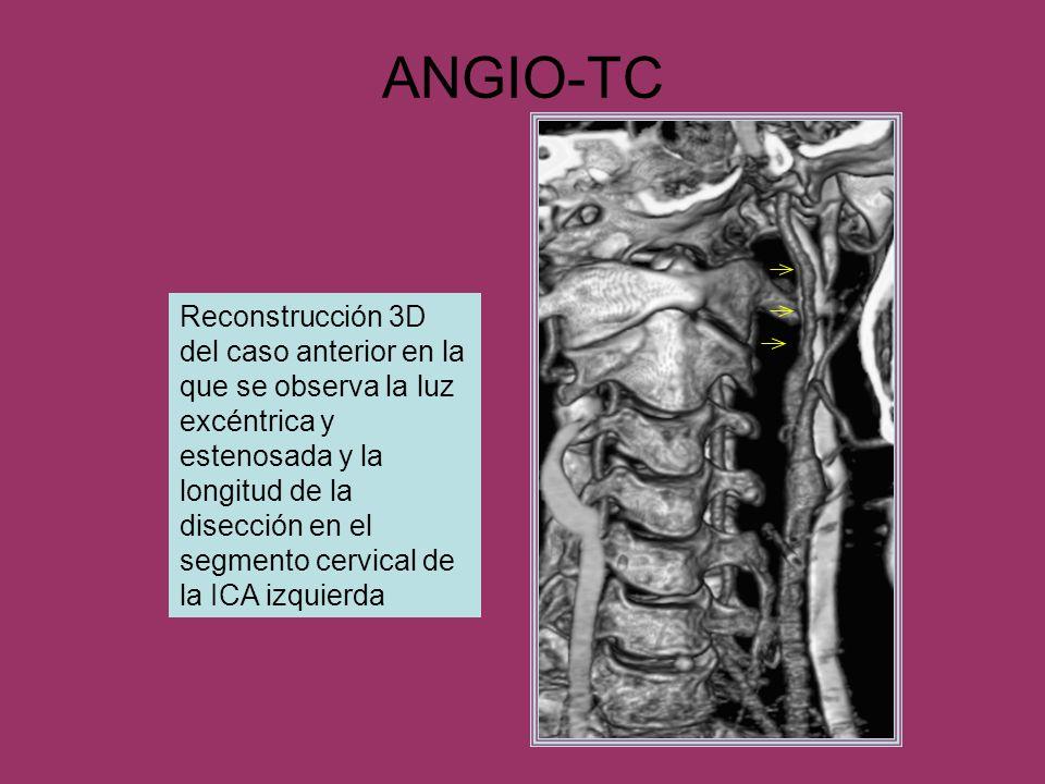 ANGIO-TC Reconstrucción 3D del caso anterior en la que se observa la luz excéntrica y estenosada y la longitud de la disección en el segmento cervical