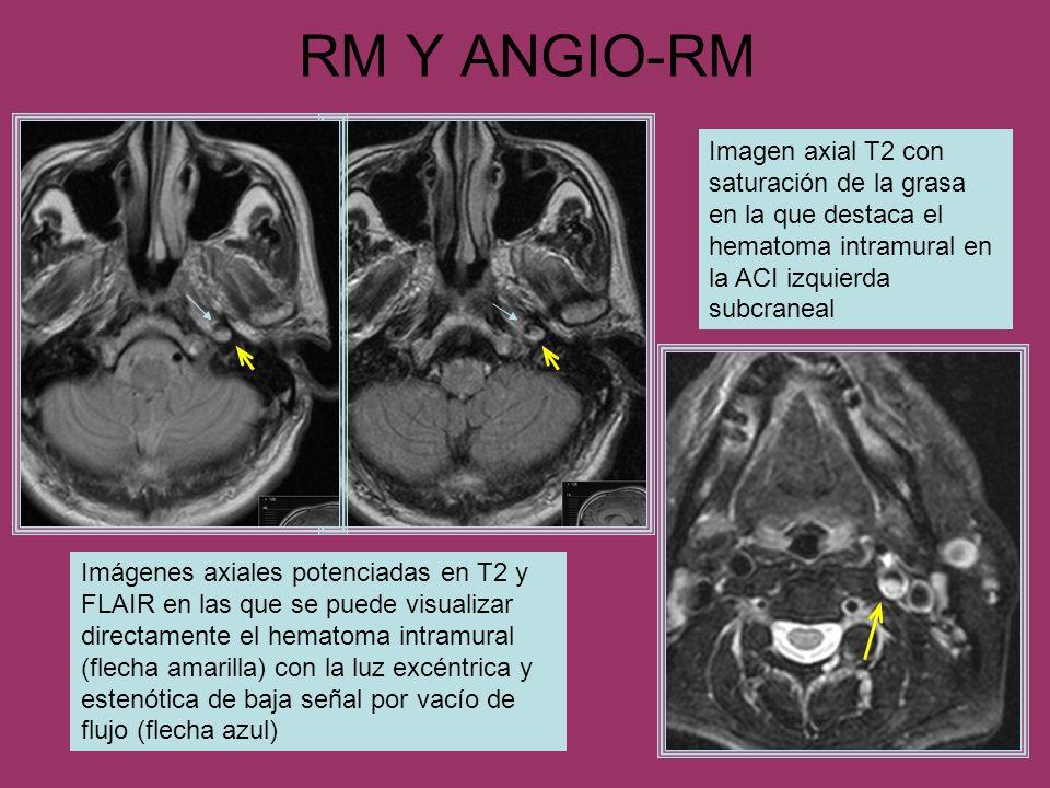 RM Y ANGIO-RM Imágenes axiales potenciadas en T2 y FLAIR en las que se puede visualizar directamente el hematoma intramural (flecha amarilla) con la l
