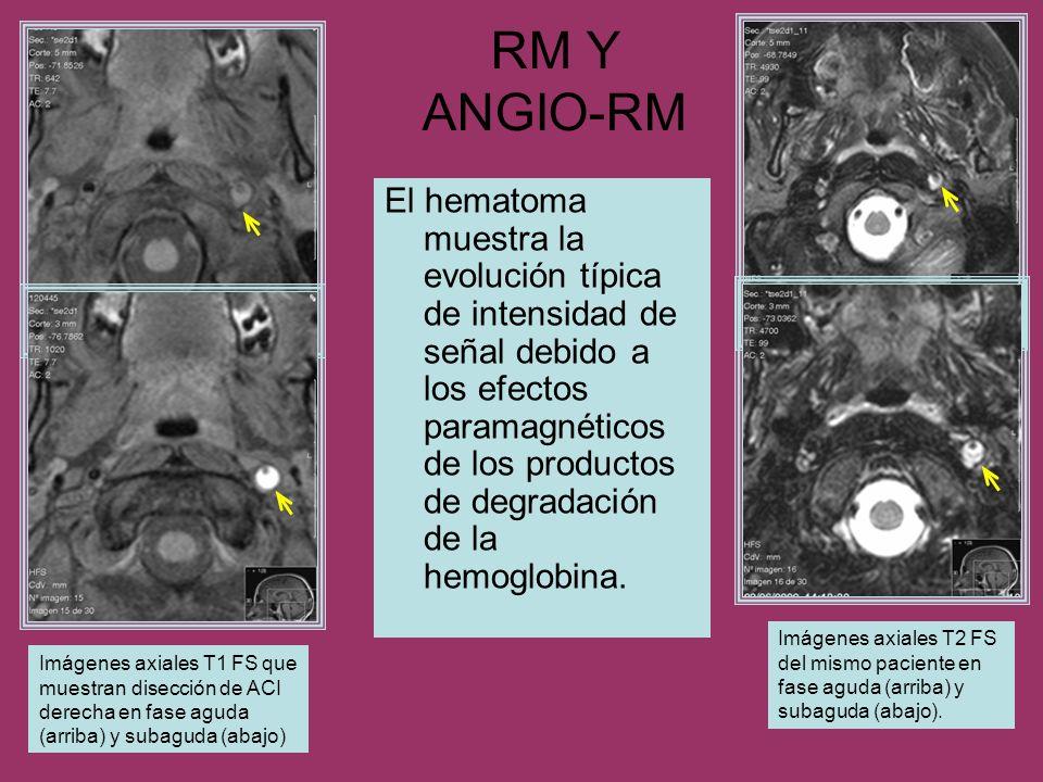 RM Y ANGIO-RM El hematoma muestra la evolución típica de intensidad de señal debido a los efectos paramagnéticos de los productos de degradación de la