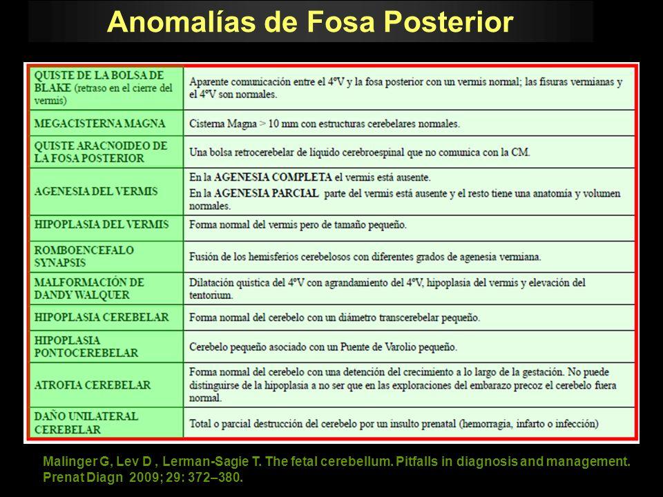 Malinger G, Lev D, Lerman-Sagie T. The fetal cerebellum. Pitfalls in diagnosis and management. Prenat Diagn 2009; 29: 372–380. Anomalías de Fosa Poste