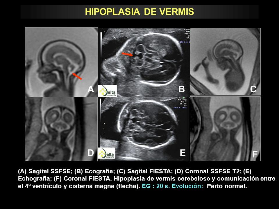 (A) Sagital SSFSE; (B) Ecografía; (C) Sagital FIESTA; (D) Coronal SSFSE T2; (E) Echografía; (F) Coronal FIESTA. Hipoplasia de vermis cerebeloso y comu