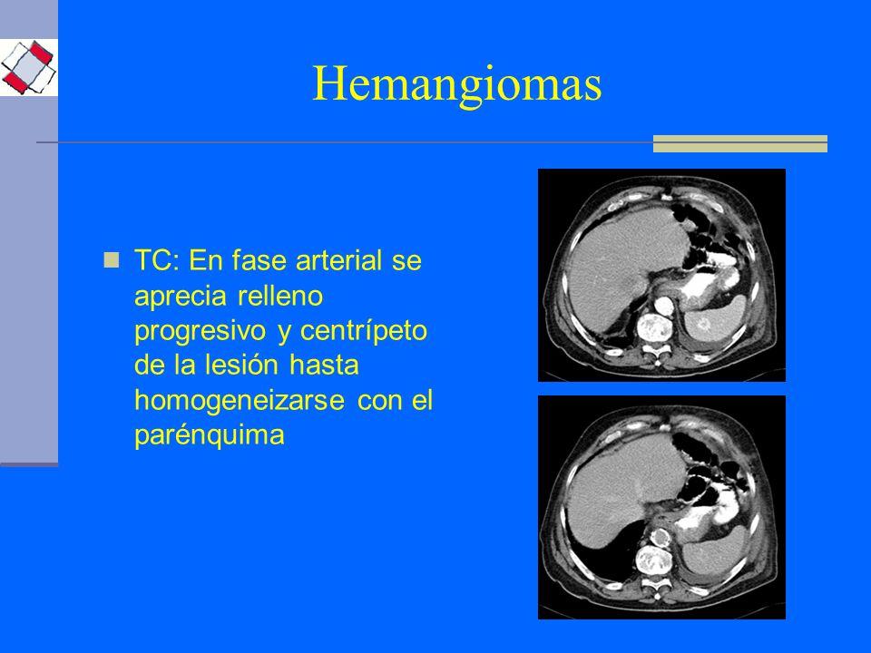 Hemangiomas TC: En fase arterial se aprecia relleno progresivo y centrípeto de la lesión hasta homogeneizarse con el parénquima