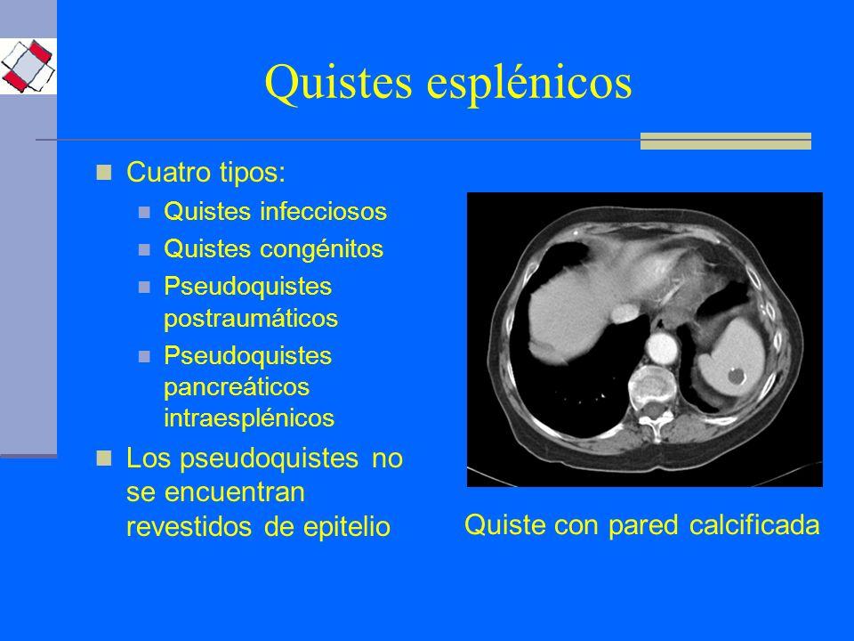 Quistes esplénicos Cuatro tipos: Quistes infecciosos Quistes congénitos Pseudoquistes postraumáticos Pseudoquistes pancreáticos intraesplénicos Los ps