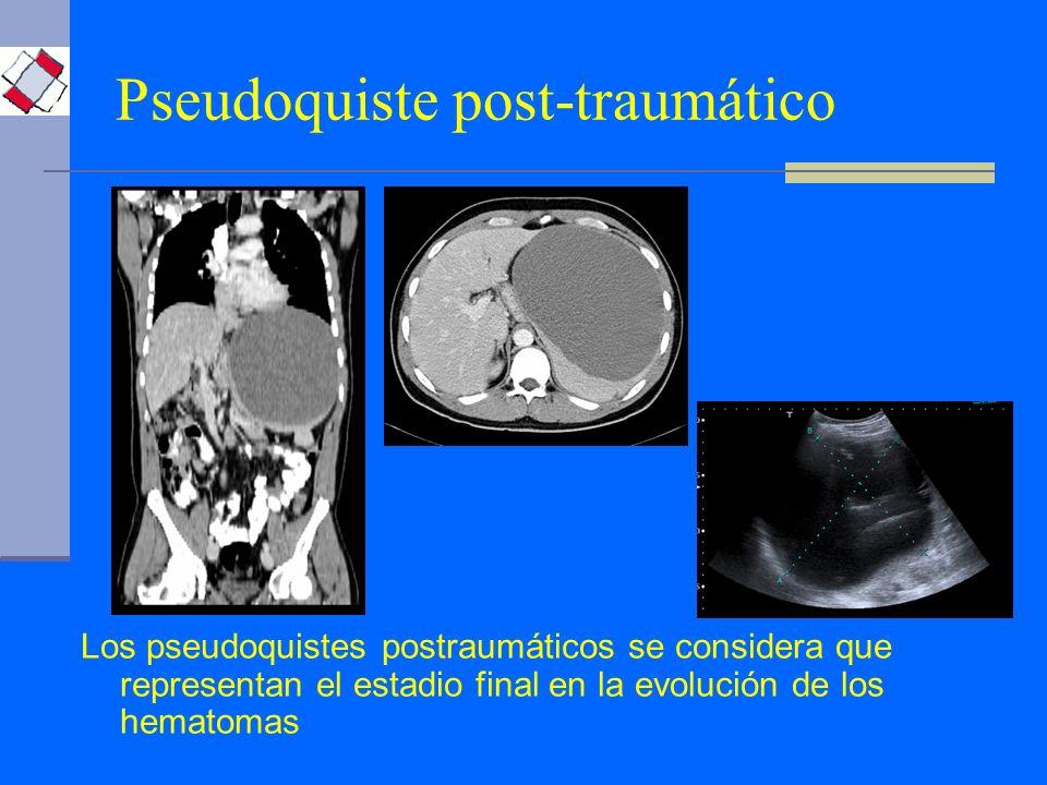 Pseudoquiste post-traumático Los pseudoquistes postraumáticos se considera que representan el estadio final en la evolución de los hematomas