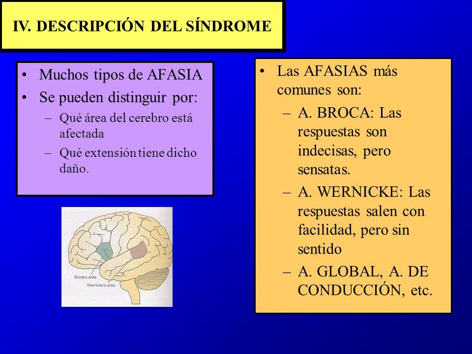 IV. DESCRIPCIÓN DEL SÍNDROME Muchos tipos de AFASIA Se pueden distinguir por: –Qué área del cerebro está afectada –Qué extensión tiene dicho daño. Las