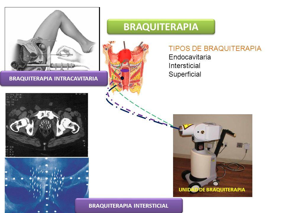 BRAQUITERAPIA UNIDAD DE BRAQUITERAPIA TIPOS DE BRAQUITERAPIA Endocavitaria Intersticial Superficial BRAQUITERAPIA INTRACAVITARIA BRAQUITERAPIA INTERST