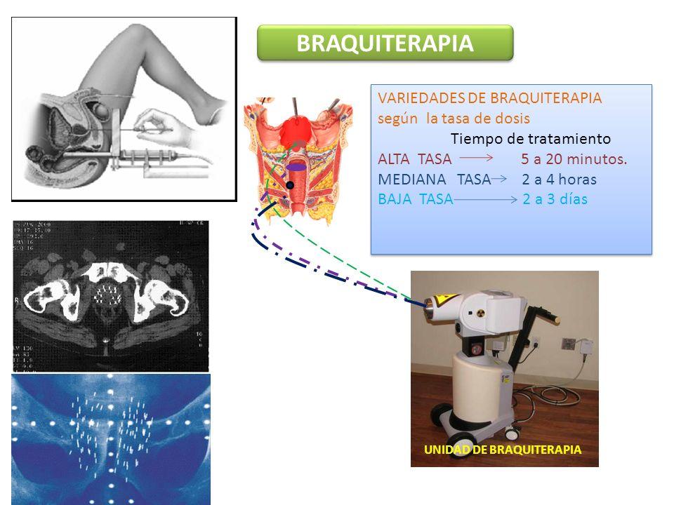 BRAQUITERAPIA UNIDAD DE BRAQUITERAPIA VARIEDADES DE BRAQUITERAPIA según la tasa de dosis Tiempo de tratamiento ALTA TASA 5 a 20 minutos.