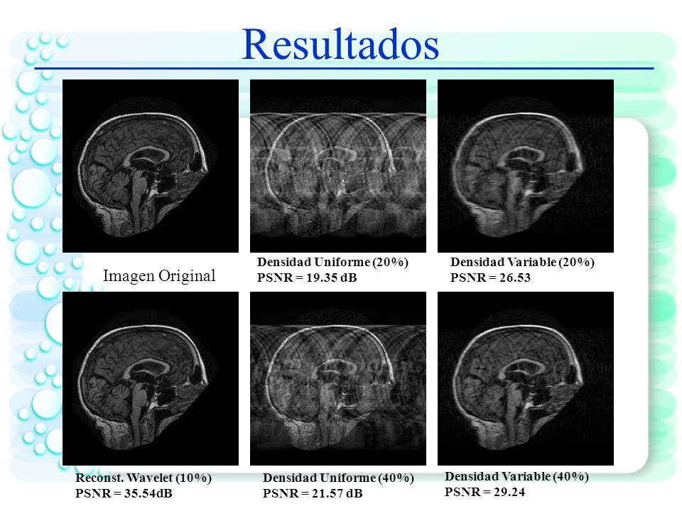 Detección de zonas de activación en fMRI usando CS Algoritmo de Mediana Ponderada SPM