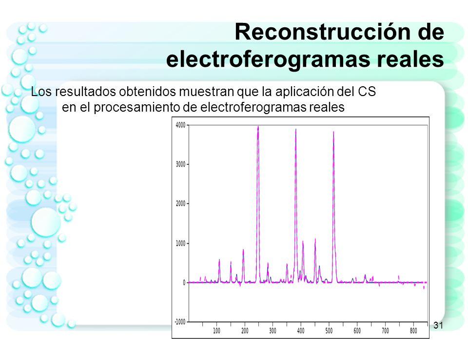 32 Reconstrucción de electroferogramas reales Los resultados obtenidos muestran que la aplicación del CS en el procesamiento de electroferogramas reales