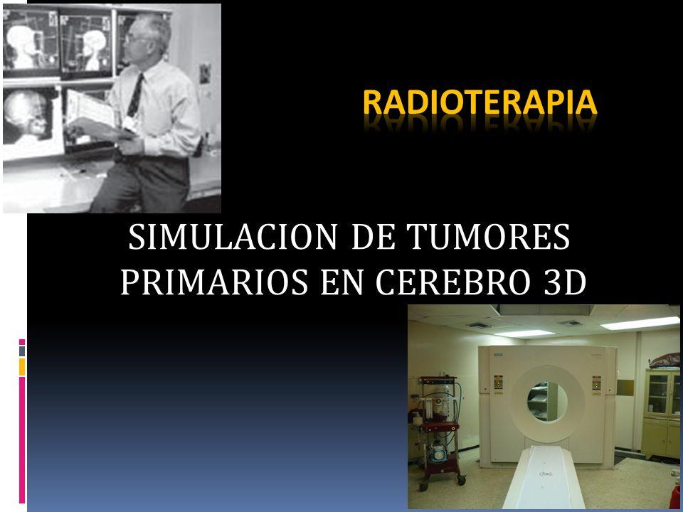 SIMULACION DE TUMORES PRIMARIOS EN CEREBRO 3D