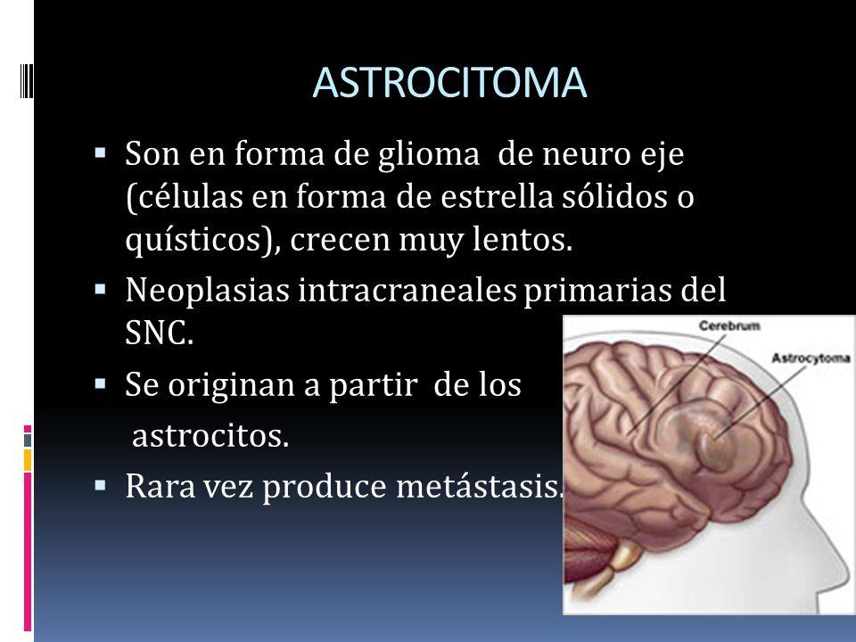 ASTROCITOMA Son en forma de glioma de neuro eje (células en forma de estrella sólidos o quísticos), crecen muy lentos. Neoplasias intracraneales prima