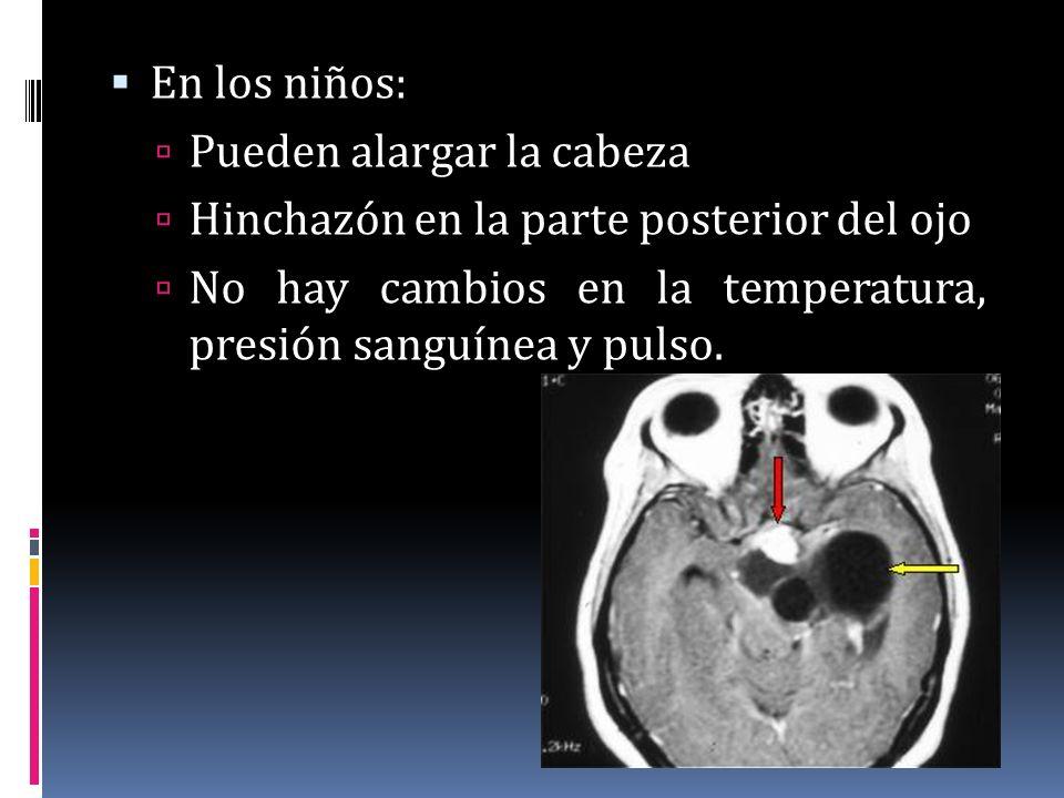 En los niños: Pueden alargar la cabeza Hinchazón en la parte posterior del ojo No hay cambios en la temperatura, presión sanguínea y pulso.