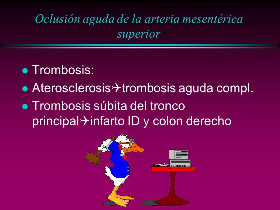 Oclusión aguda de la arteria mesentérica superior l Trombosis: Aterosclerosis trombosis aguda compl. Trombosis súbita del tronco principal infarto ID